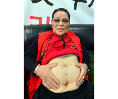 부상자 김호근 씨는 지하철 참사를 겪은 이후 뚜렷한 이유 없이 시력이 나빠지고 있고, 당뇨 등 각종 질병을 앓고 있다. 2010년 위암 수술을 받은 그는 위암도 사고 당시 유독가스를 마신 탓이라고 생각하고 있다. 위암 수술 흉터를 내보이고 있다. 정운철기자 woon@msnet.co.kr