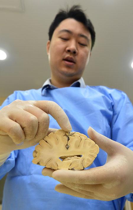 오지원 경북대학교 의대 해부학교실 교수가 포르말린에 보관하는 있는 뇌 일부를 들어 보이며 설명하고 있다. 성일권 기자 sungig@msnet.co.kr