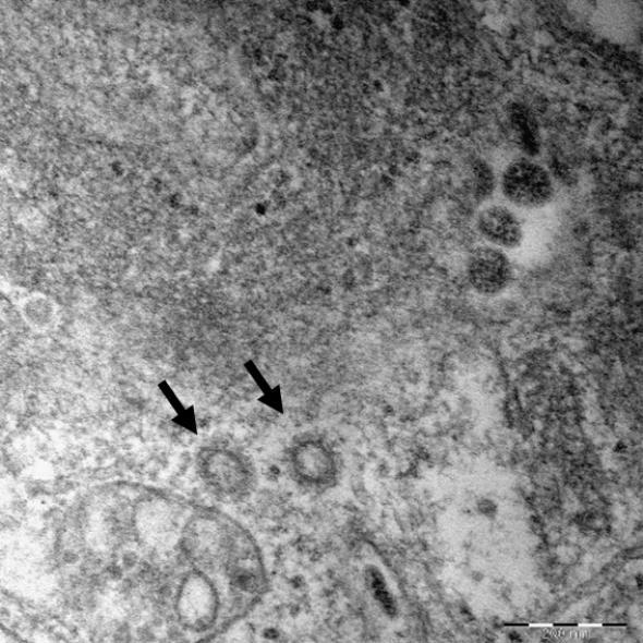 질병관리본부가 국내 신종 코로나바이러스 감염증(코로나19) 확진자 6명으로부터 얻은 바이러스 유전자를 분석한 결과 아직 변이는 발견되지 않았다고 지난달 27일 밝혔다. 이날 질병관리본부는 이렇게 분석한 유전자의 고해상 전자현미경 사진도 공개했다. 연합뉴스