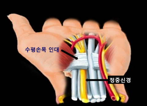 [삶의 질 떨어뜨리는 질환] ⑦손저림 대표 질환-손목터널증후군