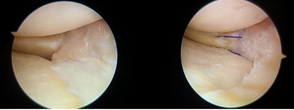 보행 시의 날카로운 무릎 통증이 6개월 이상 지속된다고 호소했던 50대 여성 환자. MRI 검사 상 파열이 관절낭까지 연결돼 있어 부분 절제술과 함께 봉합술을 시행했다.