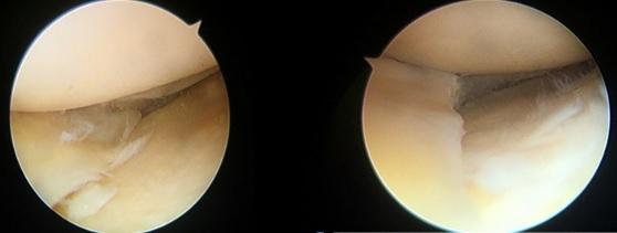 50대 남자 환자로 무릎을 움직일 때 지속적인 날카로운 통증이 3개월 이상 지속돼 MRI 검사를 실시했는데, 방사선 형태의 파열이 있어 관절경으로 부분적 제거술 시행했다.