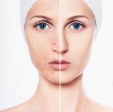 과다하게 분비된 피지가 원활하게 배출되지 못하고 모공에 쌓이게 되면 피부트러블의 대명사인 여드름을 유발하는 직접적인 원인이 된다.