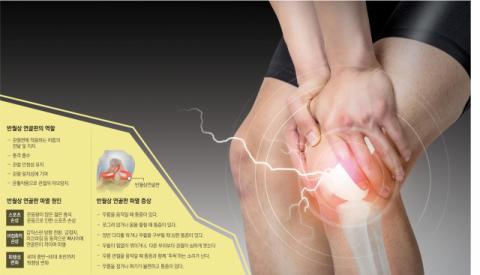 [건강플러스] 무릎 통증 참았다간 퇴행성 관절염 온다…반월상 연골판 손상